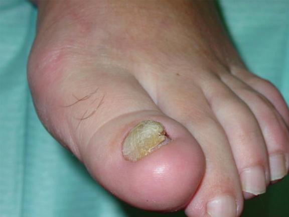 uña de los pies